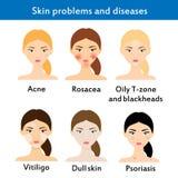 Problemas y enfermedades de piel Fotografía de archivo