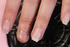 The problematic, painful nails of a girl royalty free stock photos