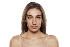 Problematic skin Stock Photos