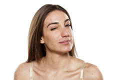 Problematic skin Royalty Free Stock Photography