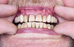 Problemen met de tanden en de gommen stock foto's