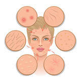 Problemen van huid stock illustratie