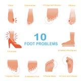 Problemi del piede Fotografia Stock