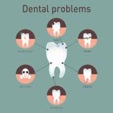 Problemi dentari di infografics medico di vettore Immagini Stock