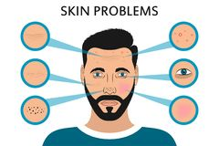 Problemi di pelle maschii del fronte Acne e brufoli, punti neri, rossore, siccità, cerchi sotto gli occhi e grinze Vettore Immagini Stock Libere da Diritti