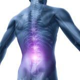Problemi dorsali Immagini Stock