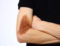 Problems of the skin Royalty Free Stock Photo