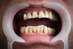 Problems with the teeth and gums concept. One of the health problems in the elderly. Royalty Free Stock Photo