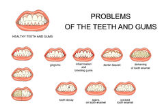 Problems of the teeth and gums. Illustration of healthy gums and teeth and oral cavity diseases Royalty Free Stock Images