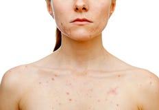 Problèmes de peau Photos libres de droits