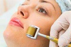 Procédure cosmétique médicale Photographie stock