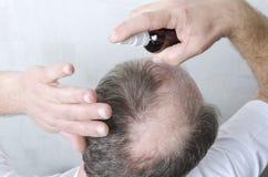 Procédure de beauté pour la croissance de cheveux L'homme a un problème avec la perte des cheveux photo libre de droits