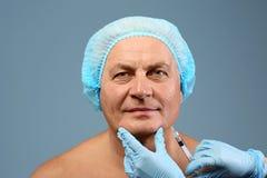 Procédure de rajeunissement facial pour l'homme supérieur Photographie stock