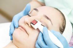 Procédure de thérapie micro médicale d'aiguille avec un rouleau moderne de derma d'instrument médical Image libre de droits