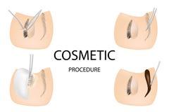 Procédure pour des prolongements de cil, stratification de cils Procédures cosmétiques de cil et d'eyebriw : Souillure, bordage,  illustration stock