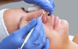 Procédure pour nettoyer la peau du visage avec un appareil en acier avec une cuillère photos libres de droits