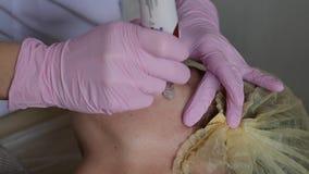 Procedimento da cosmetologia da remoção dos pontos da idade na clínica da cosmetologia Conceito de cuidados com a pele faciais vídeos de arquivo