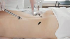 Procedimento de hirudotherapy para a jovem mulher loura filme