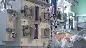 Procedimento médico da diálise de Continious que executa em ICU video estoque