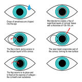 Procedimiento de la corrección del laser de la visión paso a paso Infografía stock de ilustración