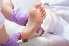 Procedimiento de la pedicura de los pies de la peladura con el dispositivo eletric en el galán Fotos de archivo libres de regalías