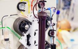 Procedimiento médico de la purificación de la sangre imagen de archivo libre de regalías