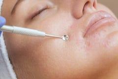 Procedimiento para limpiar la piel de la cara con un dispositivo de acero con una cuchara de espinillas, acné fotos de archivo libres de regalías