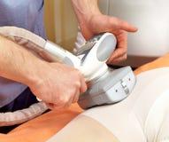 Procedura del trattamento di una cellulite immagine stock