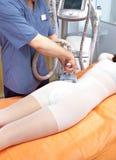 Procedura del trattamento di una cellulite fotografie stock