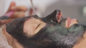 Procedura della sbucciatura del fronte di carbonio Il laser pulsa pelle pulita del fronte Trattamento di cosmetologia dell'hardwa stock footage