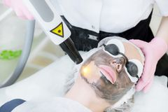 Procedura della sbucciatura del fronte di carbonio del primo piano Il laser pulsa pelle pulita del fronte Trattamento di cosmetol fotografia stock