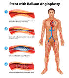 Procedura di angioplastica di stent Fotografie Stock Libere da Diritti