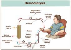 Procedura di emodialisi Usato per l'insufficienza renale illustrazione di stock