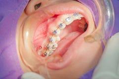Procedura di ortodonzia con miniscrew. Fotografia Stock