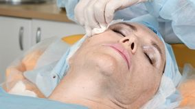 Procedura di sollevamento del filo del fronte Donna senior nel suo fine anni '50 nella clinica di bellezza Primo piano sparato di stock footage
