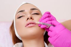 Procedure filler injection in beauty clinic. Beautiful girl on rejuvenation procedure in beauty clinic filler injection. Injection in her lips royalty free stock photography
