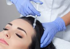 Procedure of mesotherapy. The doctor cosmetologist makes the procedure of mesotherapy in woman`s head. Strengthen hair and their growth Royalty Free Stock Photo