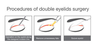 Procedures of double eyelids surgery. Royalty Free Stock Image