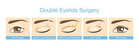 Procedures of double eyelids surgery. Stock Photo