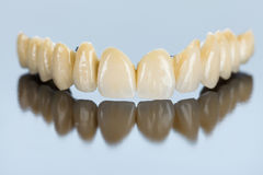 Procelain teeth on metallic basis Stock Photo