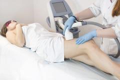 Proces laserowa depilacja żeńskie kończyny zdjęcia royalty free