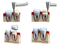 Proceso de instalación dental de la corona Imagen de archivo libre de regalías
