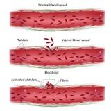 Proceso de la coagulación de sangre Imágenes de archivo libres de regalías