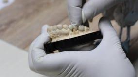 Proceso de la criatura del implante de Ceramet en el laboratorio almacen de metraje de vídeo