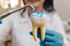 Proceso del relleno en el diente falso fotografía de archivo