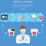 Process av tandläkekonstbegreppet Fotografering för Bildbyråer