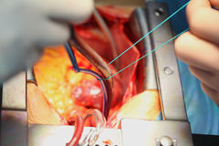 Process of cardiac surgical operation.  Royalty Free Stock Photo