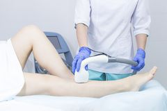 The process of laser depilation of female limbs. In the beauty salon royalty free stock images