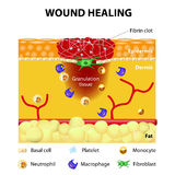Process of wound healing Royalty Free Stock Photography