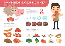 Processed meats and cancer. A man eating processed meats. Anti-cancer foods. Eating healthy food royalty free illustration